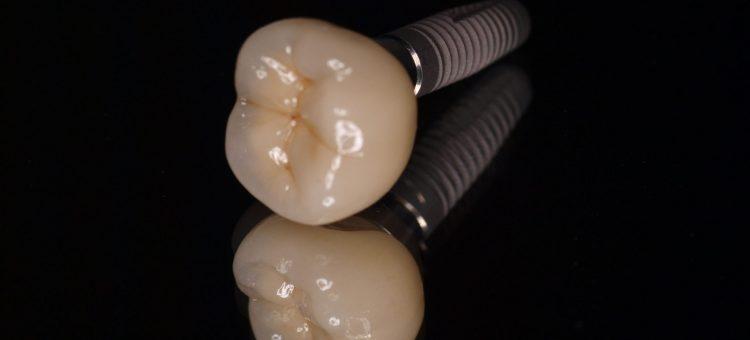 implanty rzeszów