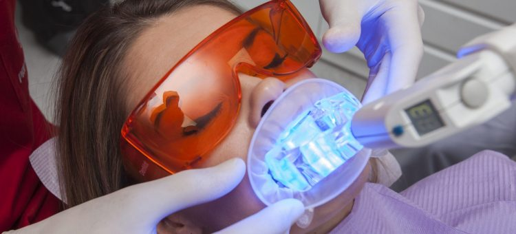 wybielanie zębów rzeszów